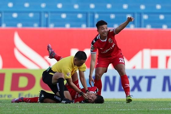 Cầu thủ U22 Việt Nam bị chấn thương kinh hoàng móp đầu, thủng thái dương ngay tại trận đấu