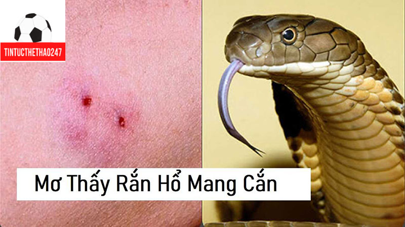 Mơ thấy rắn hổ mang cắn chân - chiem bao thay ran danh so may?